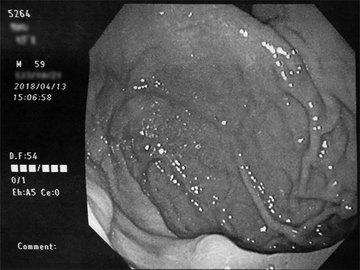 胃カメラ2.jpg